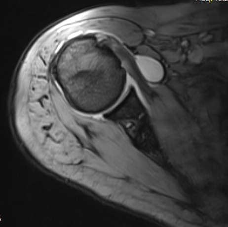 https://commons.wikimedia.org/wiki/File:Shoulder_MRI_141806.png