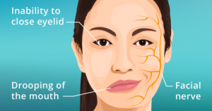 bell's palsy facial nerve